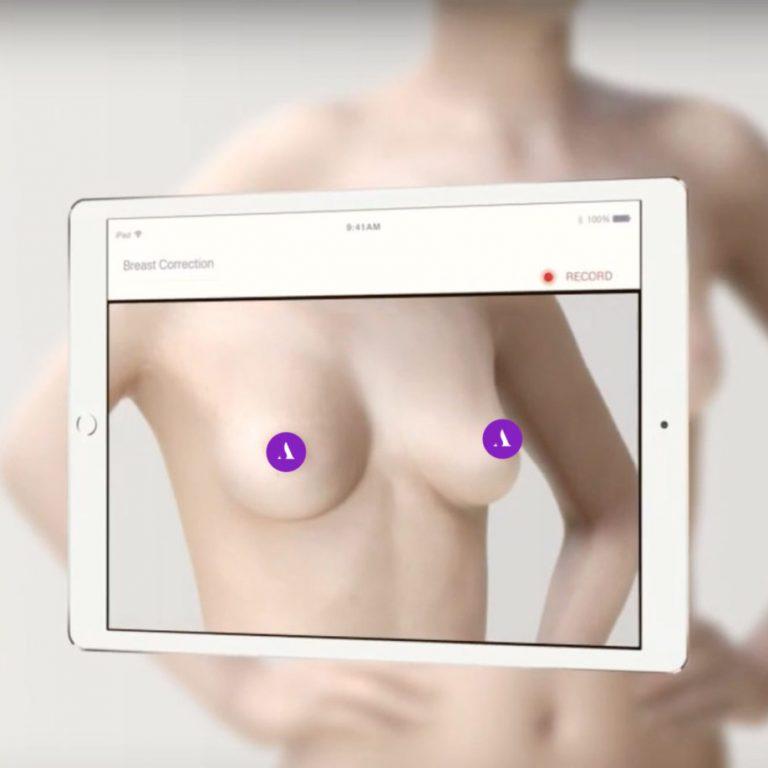 3D augmented reality voor plastische chirurgie